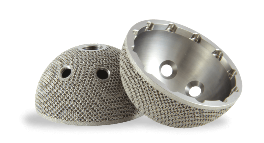 Additive Manufacturing Implant